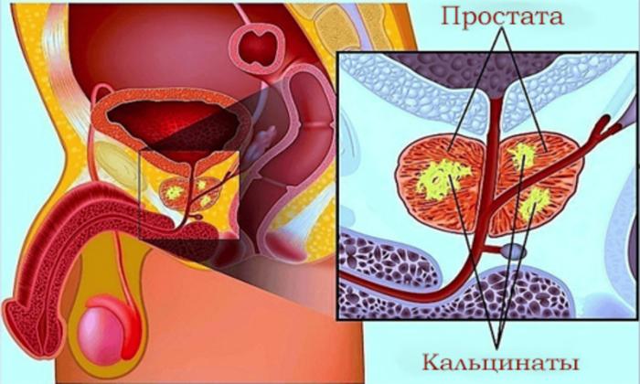 Предстательная железа и кальцинаты
