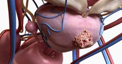 терапии рака предстательной железы 4 степени