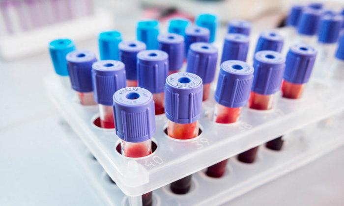 Особенности анализа крови при простатите